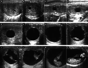 Camargo et al., 2020 Ultrasonografías de útero en trasplante de embrión de caballos en una mula receptora.